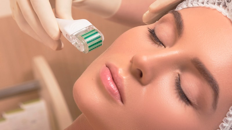 tratamento-facial-microagulhamento
