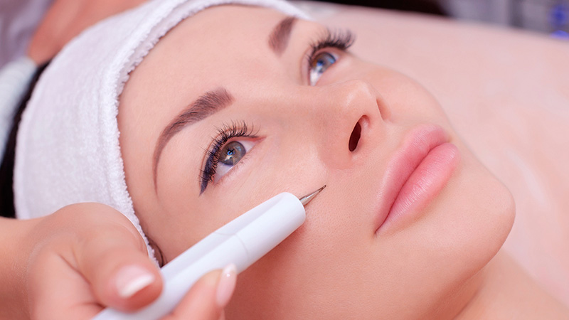 tratamento-facial-jato-de-plasma